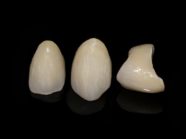 PFZ porcelain fused to zirconia crowns