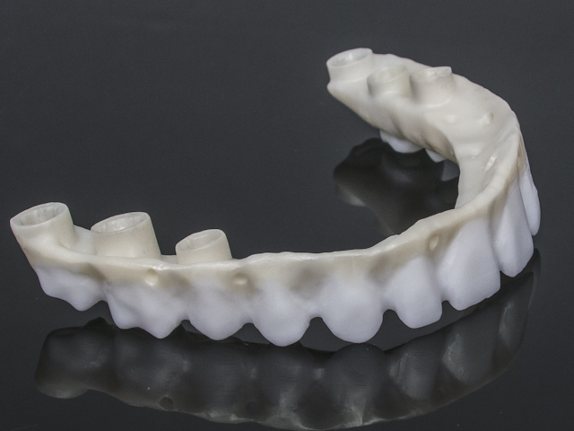Zirconia reconstruction screw retained implant-2