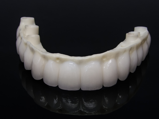 Zirconia reconstruction screw retained implant-4