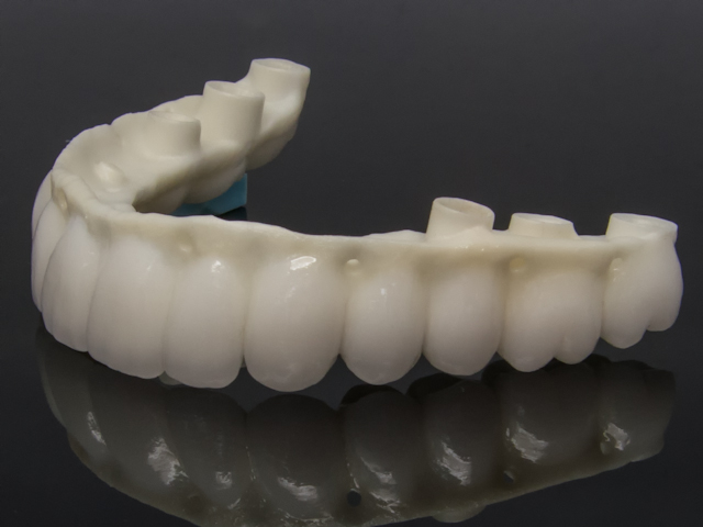 Zirconia reconstruction screw retained implant-5