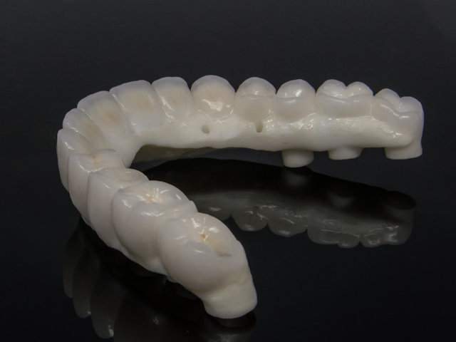 Zirconia reconstruction screw retained implant-6