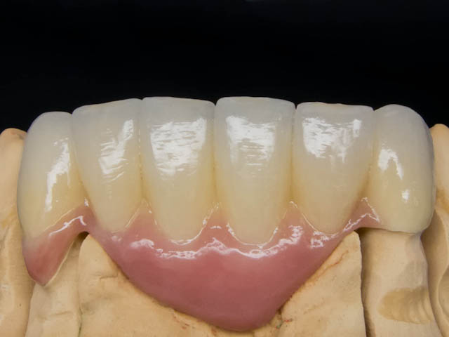 zirconia bridge pink tissue